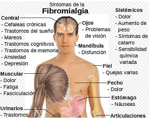 fibromialgia-remedio